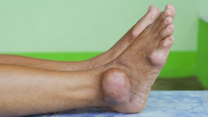 5-risk-factors-for-gout-01-722x406