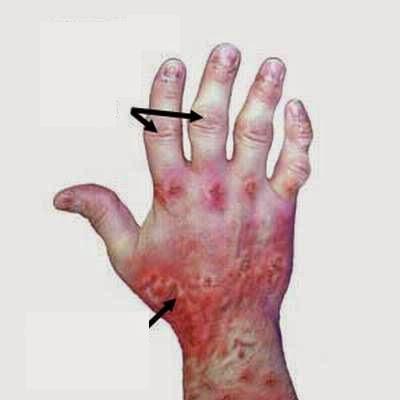 Bệnh viêm khớp vảy nến