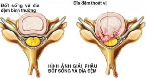 thoat_vi_dia_dem_cot_song_