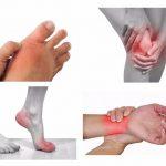 7 Triệu chứng bệnh viêm khớp dễ nhận biết nên đừng để quá muộn