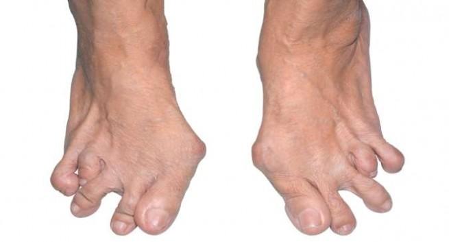 Biến dạng khớp xảy ra ở người mắc bệnh viêm khớp dạng thấp lâu năm - Benh viem khop dang thap