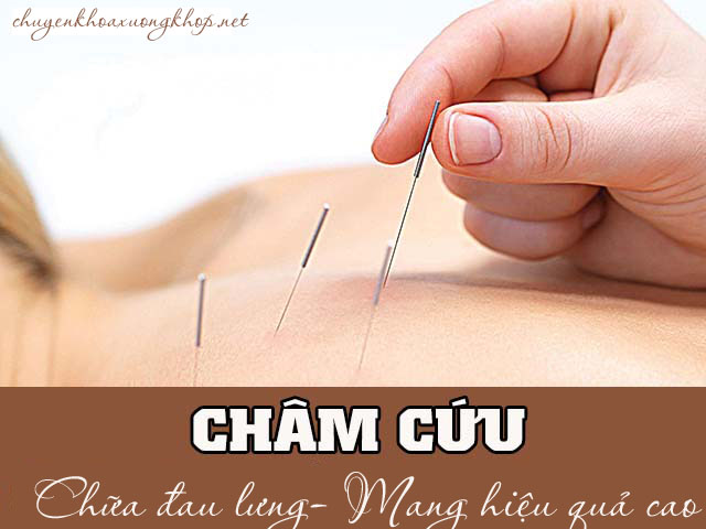 châm cứu chữa đau - châm cứu đau thắt lưng