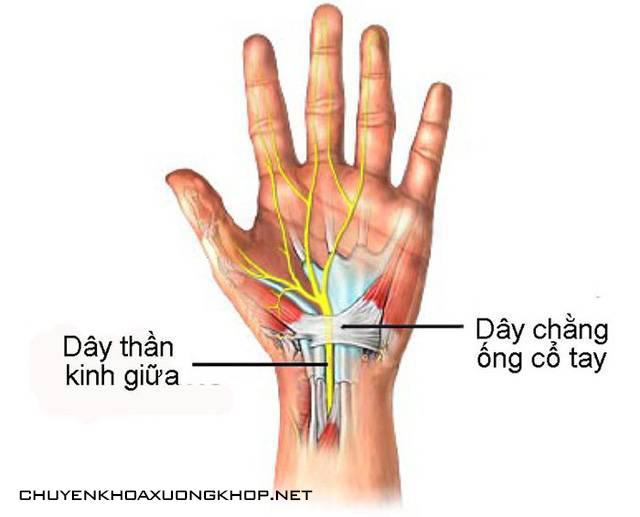 Tê mỏi chân tay do hội chứng ống cổ tay - tê nhức chân tay đau mỏi vai gáy