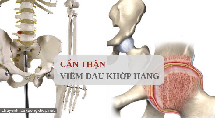 Cẩn thận với bệnh viêm đau khớp háng - dieu tri viem khop hang