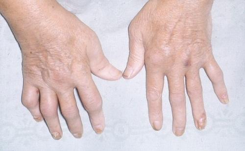 Dấu hiệu đối xứng ở các khớp là dấu hiệu điển hình nhất của bệnh viêm khớp dạng thấp