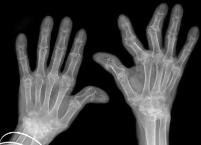 Biến dạng các khớp ở bệnh nhân viêm khớp dạng thấp thể hiện rõ qua ảnh chụp X-quang