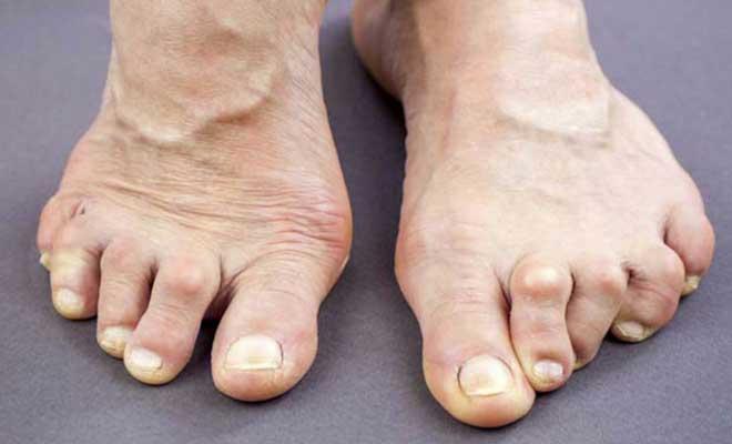Các hạt dưới da là đặc điểm phổ biến của bệnh nhân viêm khớp dạng thấp