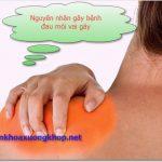 Đau mỏi vai gáy là bị bệnh gì, chữa trị như thế nào?