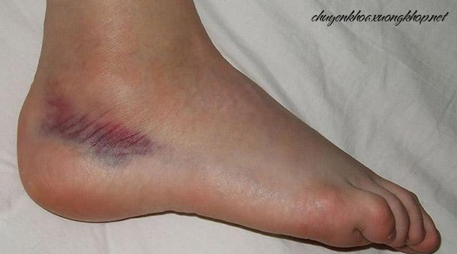 Nguyên nhân thoái hóa khớp cổ chân