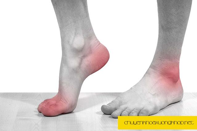 Biểu hiện của người bị bệnh gout