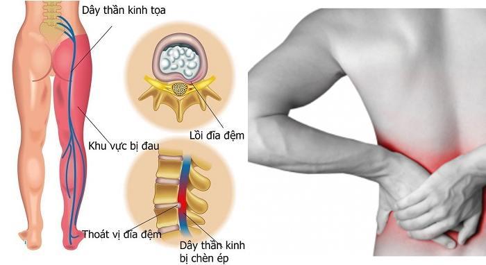 Thuốc chữa trị bệnh đau dây thần kinh tọa khỏi cho nhiều người
