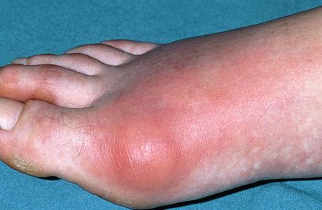 Bệnh gút có chữa khỏi dứt điểm được không ?