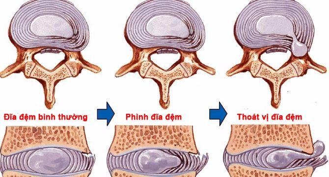 Cách điều trị bệnh phồng lồi đĩa đệm cột sống L4 - L5 - S1