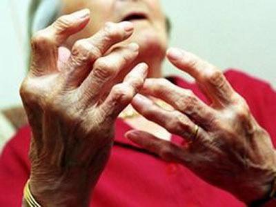 Bệnh thấp khớp cấp và những điều cần biết
