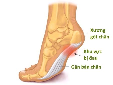 Kết quả hình ảnh cho đau gót chân