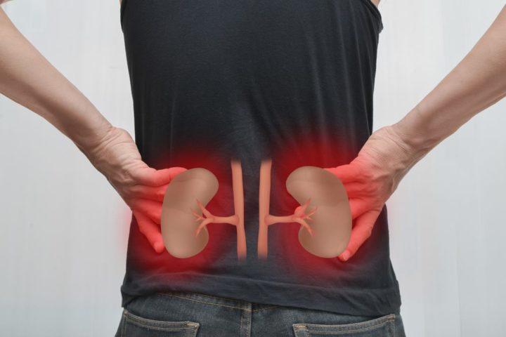 Các bệnh về thận có thể gây ra đau mỏi lưng