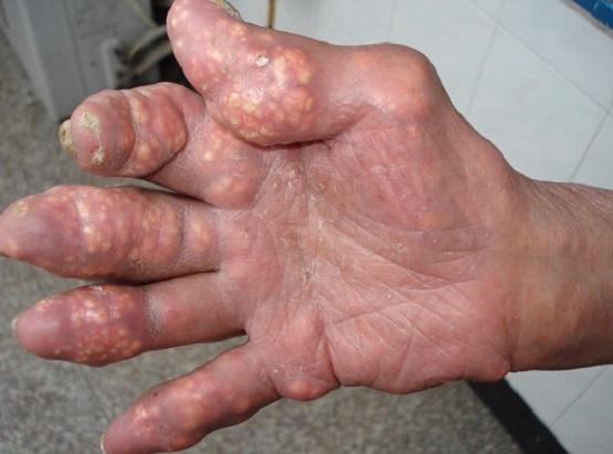 tac-hai-benh-gout