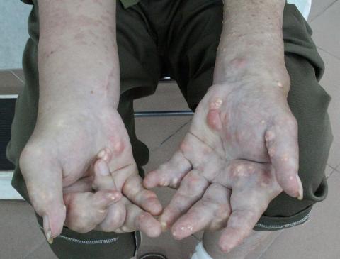 giai-doan-benh-gout-1