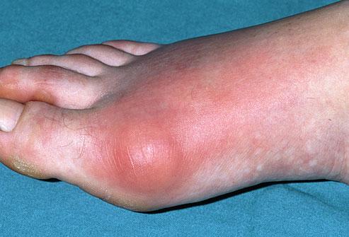 giai-doan-benh-gout-2