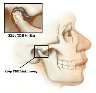 viem-khop-thai-duong-ham-14