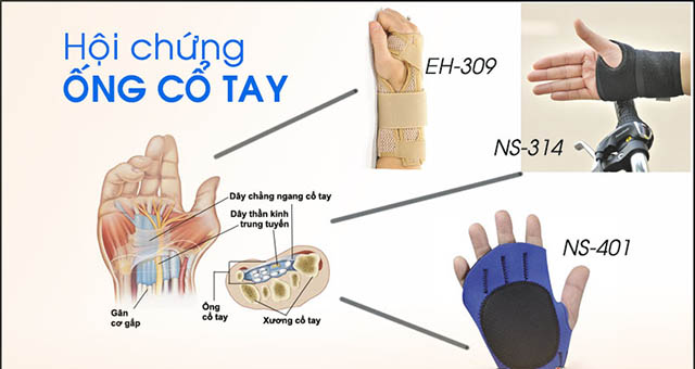 Biến cứng phong thấp hội chứng ống cổ tay