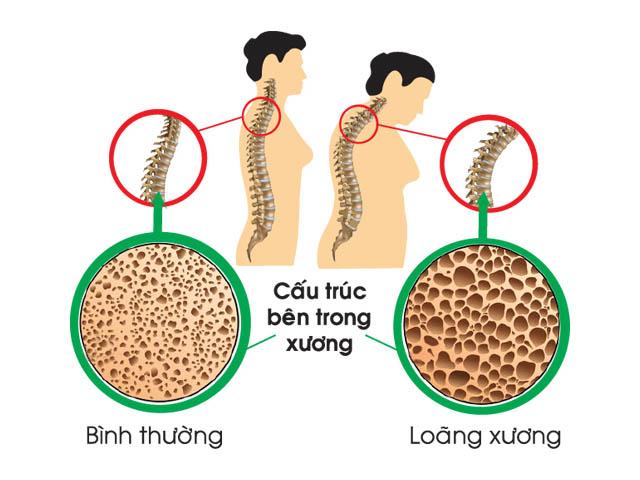 Loãng xương biến chứng bệnh phong thấp
