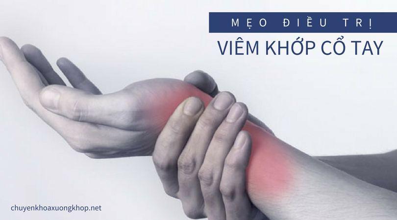 Mẹo điều trị viêm khớp cổ tay - viêm khớp cổ tay