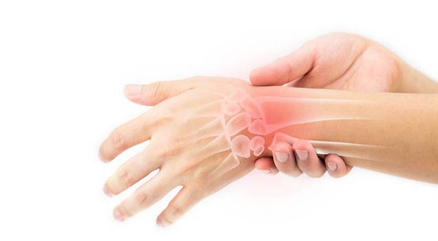 Viêm khớp cổ tay có nhiều dấu hiệu đặc trưng dễ nhận biết - Đau khớp cổ tay