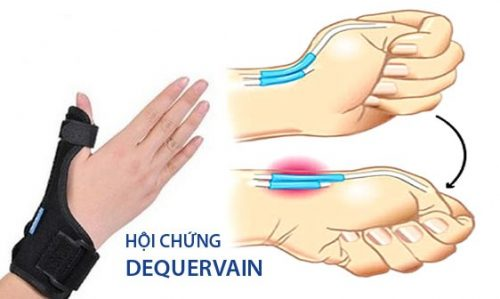 Hội chứngDe Quervain