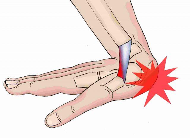 Các chấn thương bàn tay, cổ tay có thể dẫn đến tình trạng viêm khớp cổ tay