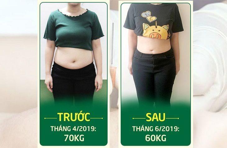 Hồng Nhung đã cấy chỉ giảm béo thành công tại Đông phương Y pháp