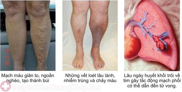 Viêm tắc tĩnh mạch, gây đông máu