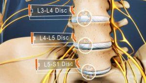 Cách chữa thoát vị đĩa đệm L5 S1 không cần phẫu thuật