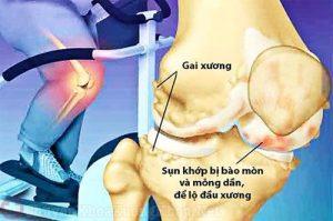 6 dấu hiệu gai khớp gối thường bị xem nhẹ bỏ qua