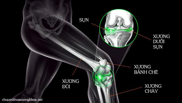 Cấu tạo của khớp gối gồm các bộ phận chính là xương đùi, xương chày và xương bánh chè