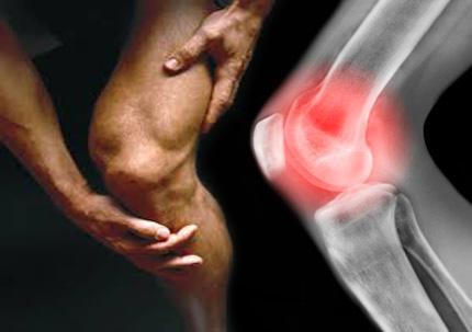 Đau nhức đầu gối là một trong những dấu hiệu nhận diện viêm khớp gối