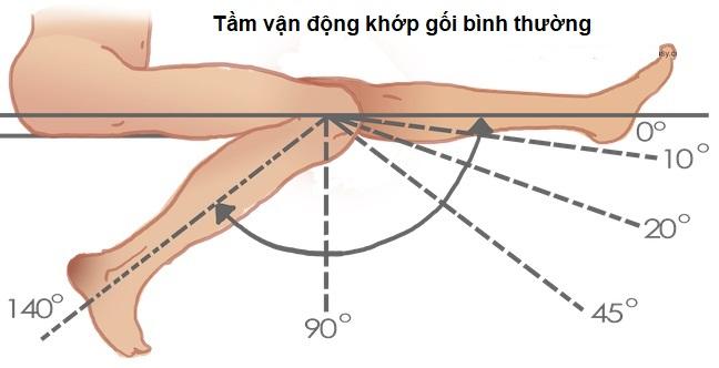 Người bị viêm khớp gối có thể ảnh hưởng đến tầm vận động khớp gối bình thường