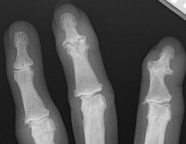 Thoái hóa khớp ngón tay dẫn đến biến dạng khớp - dau khop ngón tay
