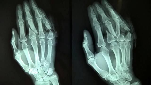 Các chấn thương có thể dẫn đến đau khớp ngón tay