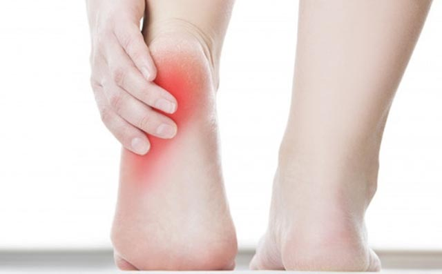 Khớp gót chân - Triệu chứng thoái hóa khớp