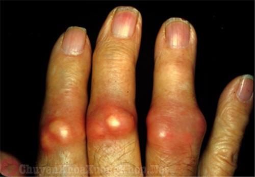 Khớp ngón tay bị đau và sưng to