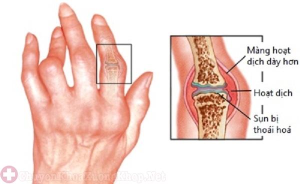 Khớp ngón tay bị sưng và gây đau nhức