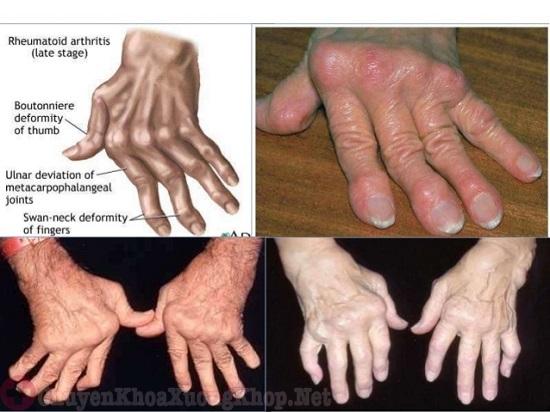Một số biến chứng khi bị sưng khớp ngón tay