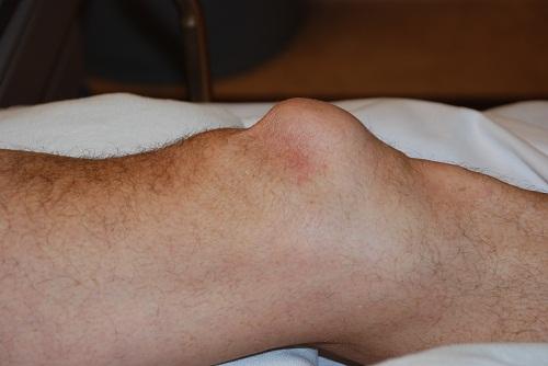 Biến chứng nguy hiểm của bệnh viêm khớp gối