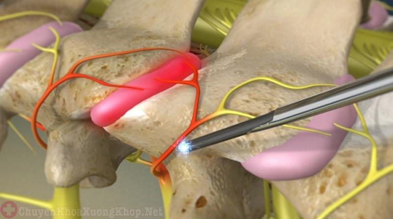 Phương pháp điều trị thoát vị đĩa đệm bằng laser