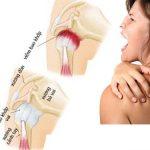 3 bài tập chữa thoái hóa khớp vai hiệu quả đơn giản dễ tập