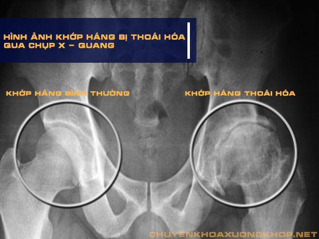 Một vài triệu chứng nhận biết của thoái hóa khớp háng qua chụp X - quang: