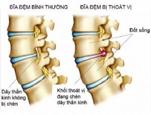 Điều trị thoát vị đĩa đệm cột sống thắt lưng không cần phẫu thuật