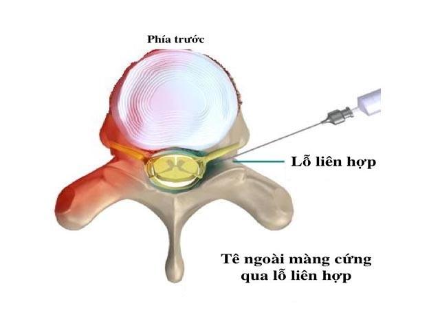 Điều trị thoát vị đĩa đệm cột sống thắt lưng bằng tiêm phong bế