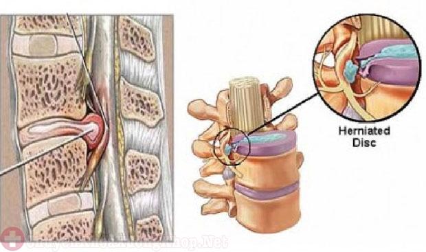 Điều trị thoát vị đĩa đệm cột sống thắt lưng